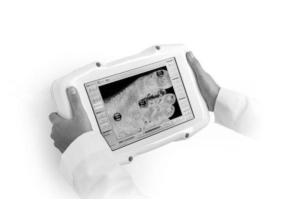 handheld-kent-imaging